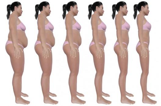Fettabsaugen, wenn die Diät nicht hilft?